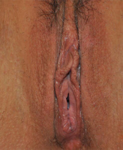 Labiaplasty Before and After Pictures Houston, TX